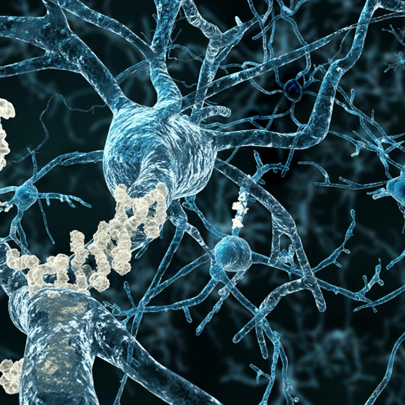 Alzheimers disease neurons with amyloid plaques